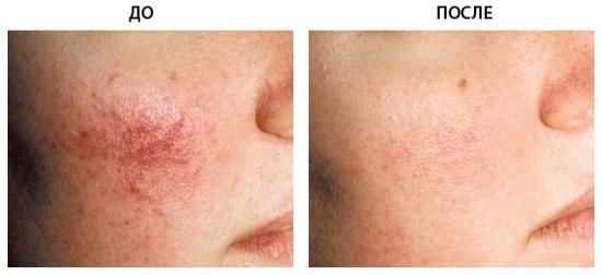 удалить сосудистые звездочки на носу Лазерное удаление сосудов в клинике Gold Laser